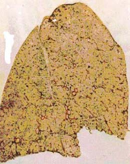Freeze-dried section of basically healthy lung